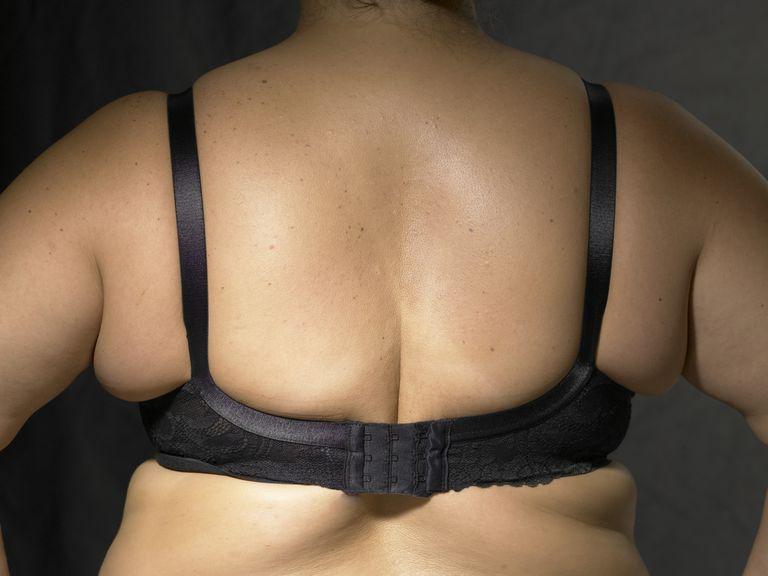 Woman wearing smaller size bra