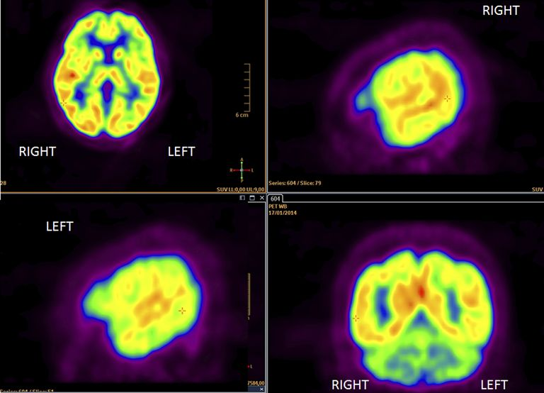 images of a PET scan of the brain
