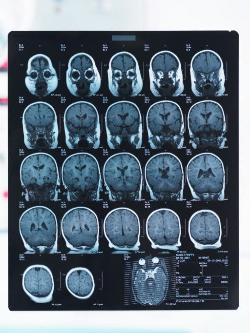 Brain MRI is used to diagnose RPLS