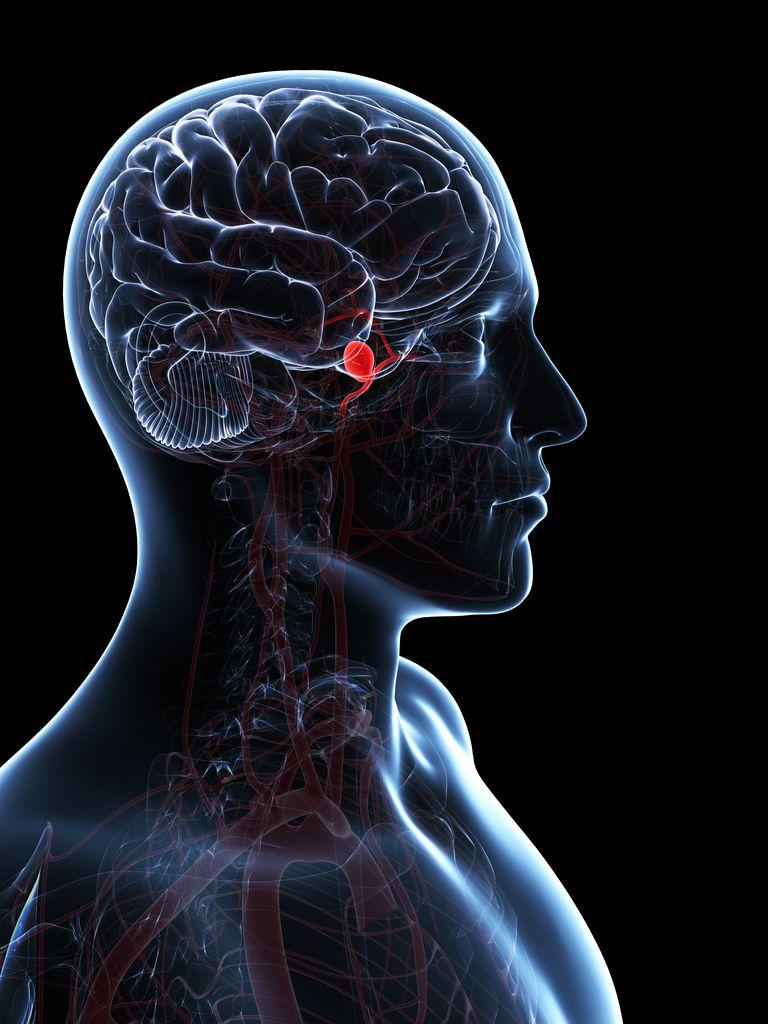 Brain aneurysm, artwork