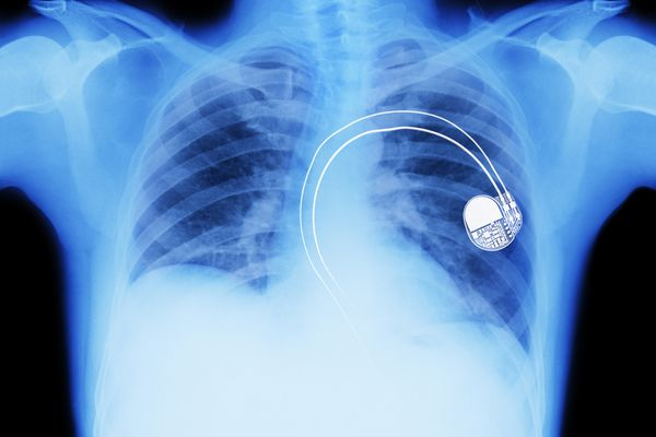 x ray of pacemaker