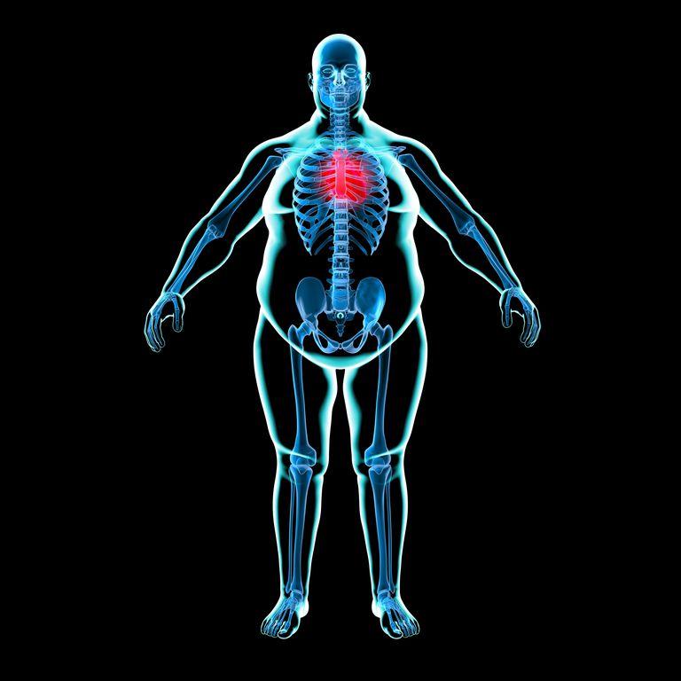 obesidad y corazon, sobrepeso y enfermedades cardiovasculares
