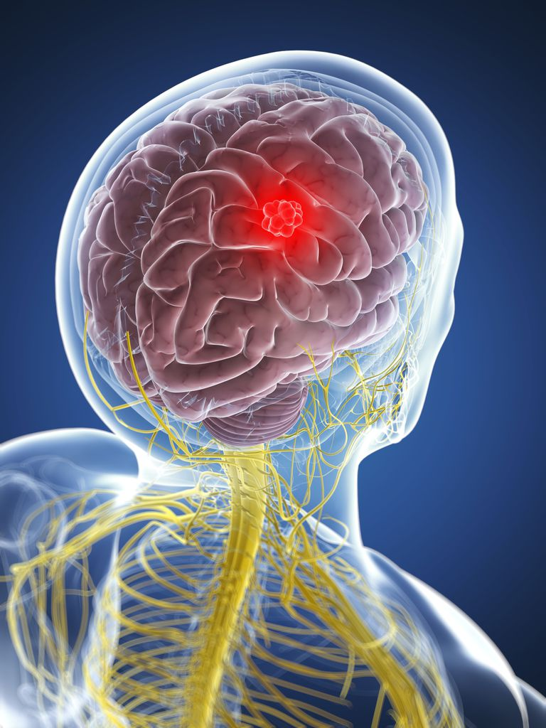 Coping With Your Loved Ones Brain Tumor
