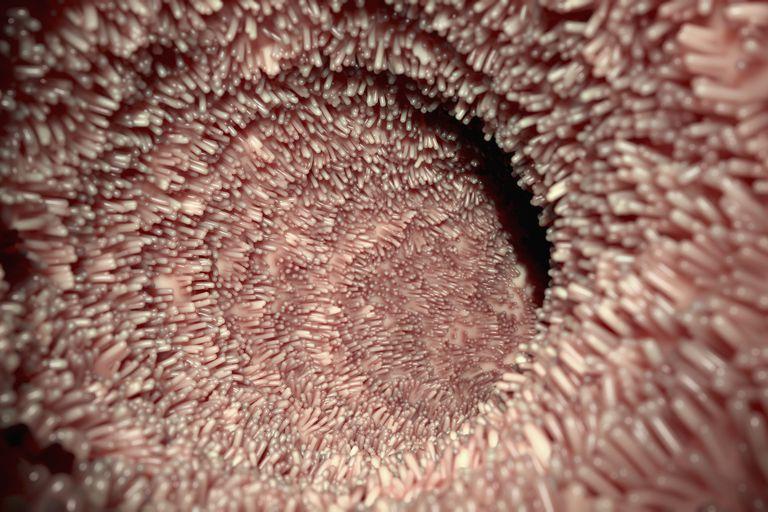 normal intestinal lining