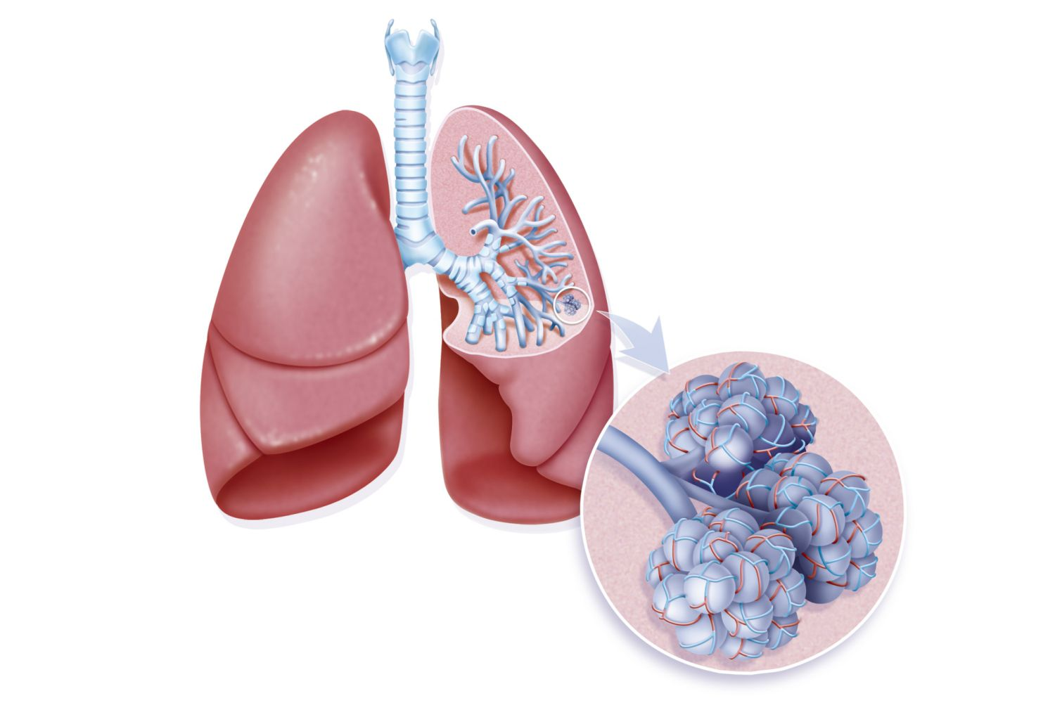 lung and alveoli Bronchioles are tiny airways that carry oxygen to alveoli, or air sacs, in the lungs and help stabilize breathing in the respiratory system, according to aboutcom bronchioles are lined.