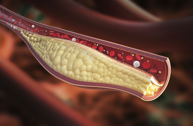 diagram of a blood vessel with a blood clot