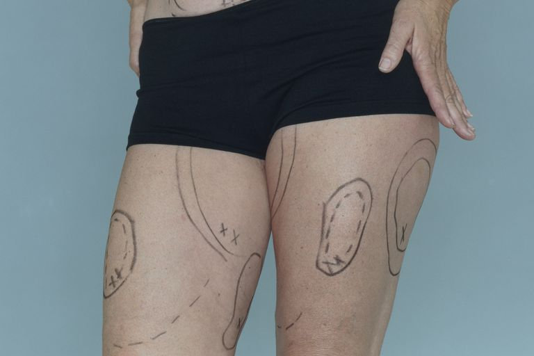 Cosmetic surgery markings on a woman's legs.