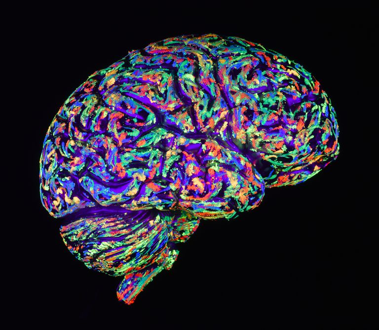 The Amazing Brain: Alzheimer's vs. Vascular Dementia
