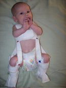 pavlik harness hip dysplasia