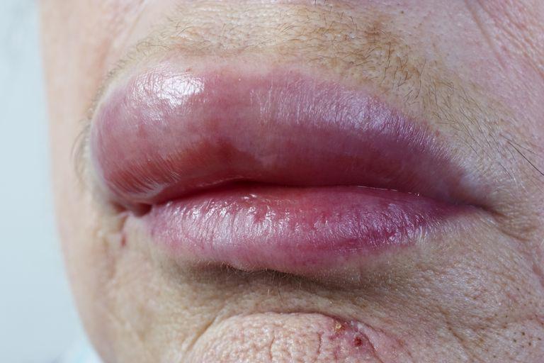 lip allergy