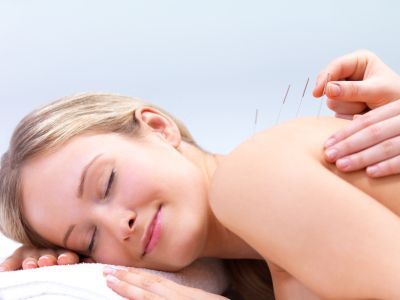 acupuncture needles being placed on a woman's back