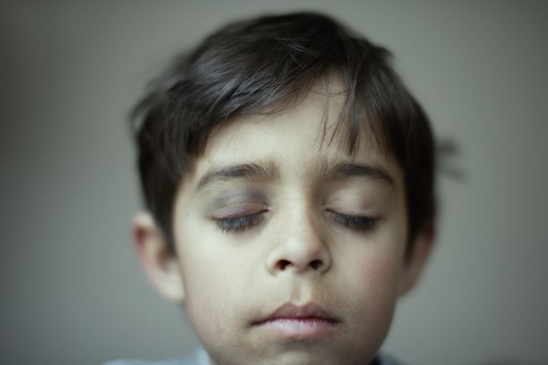 Mixed race boy with black eye