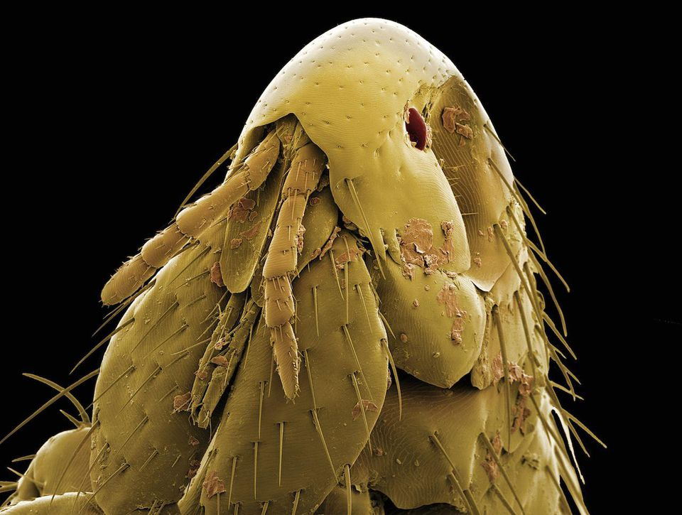 Photo of Microscope-Flea (Ctenocephalides)