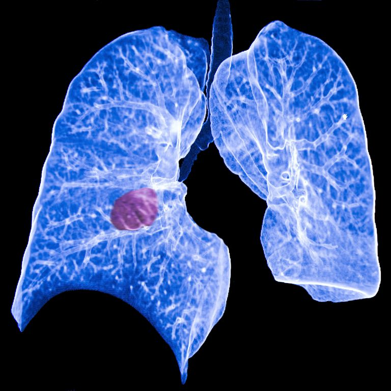 chest ct showing a primary lung cancer