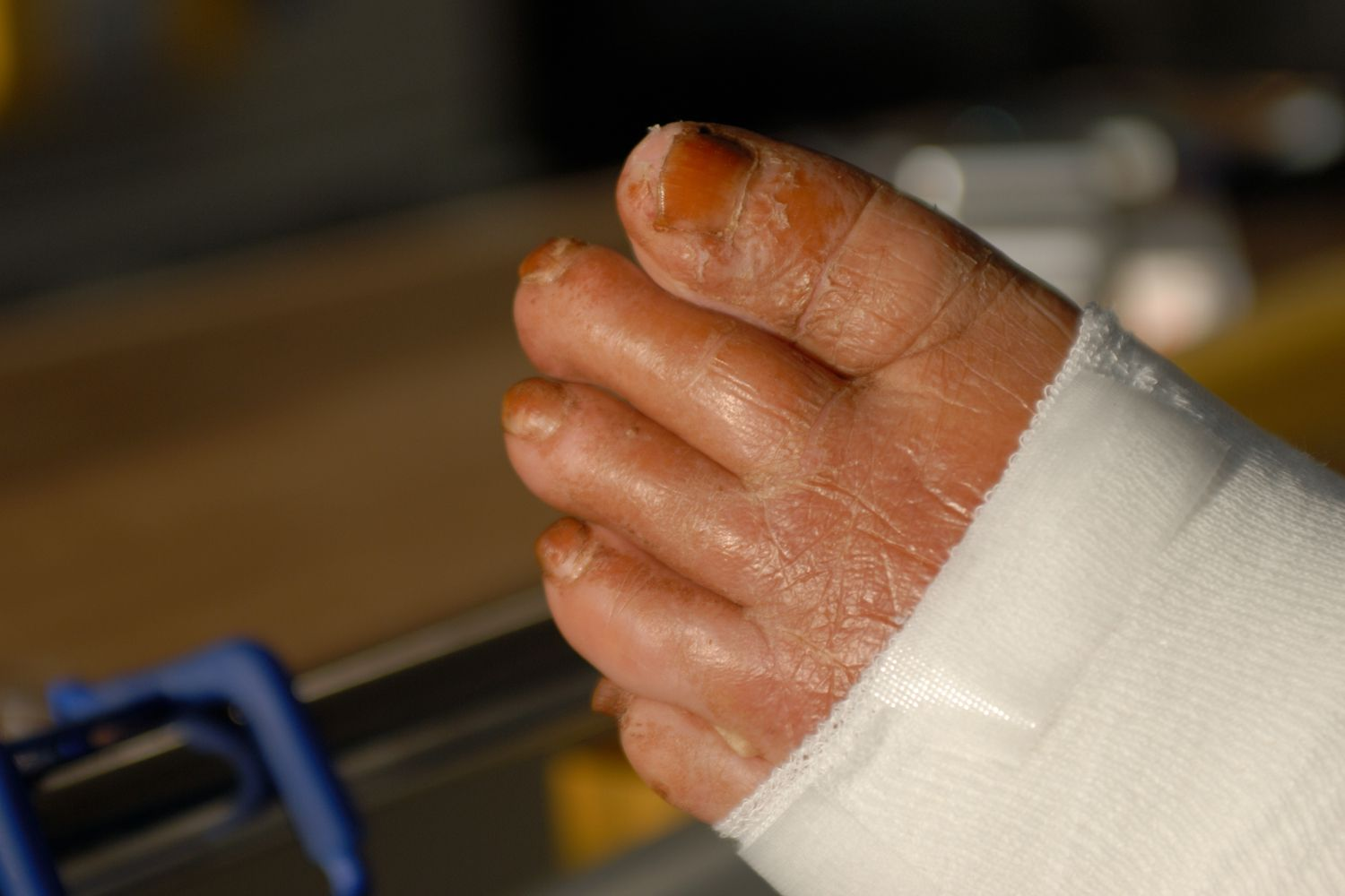 Common Bacterial Skin Infections That Cause Rashes