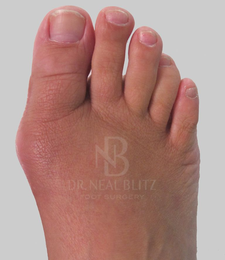 Return-of-Bunion-Dr-Blitz.jpg