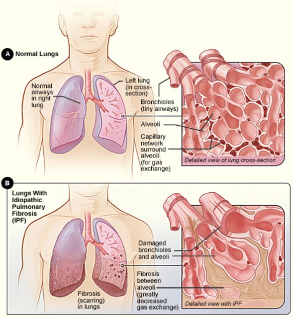 diagram showing the changes of idiopathic pulmonary fibrosis in the lungs