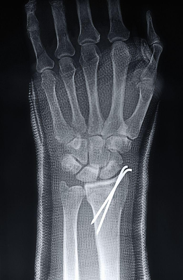 wire pin bone
