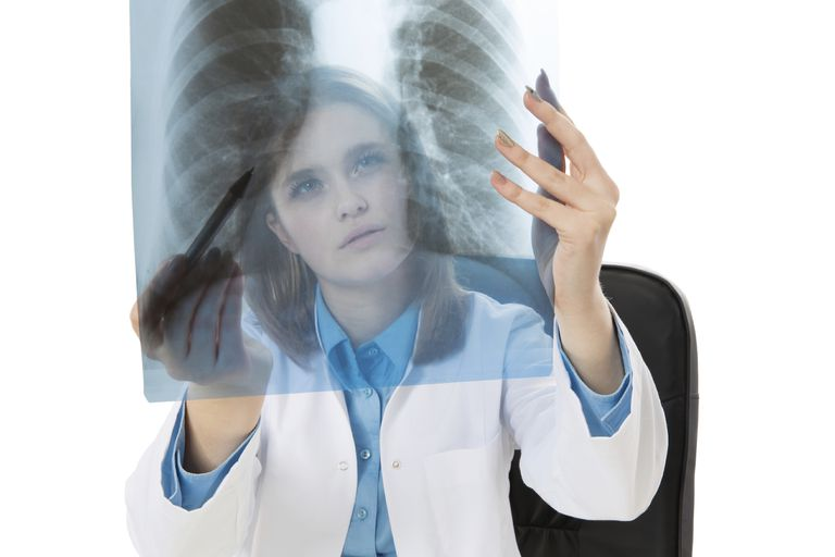 young female doctor looking at chest x-ray