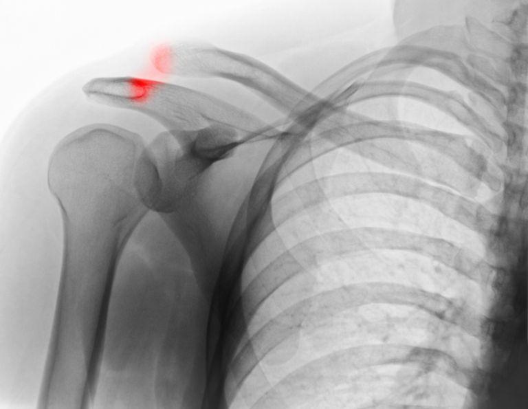 shoulder separation