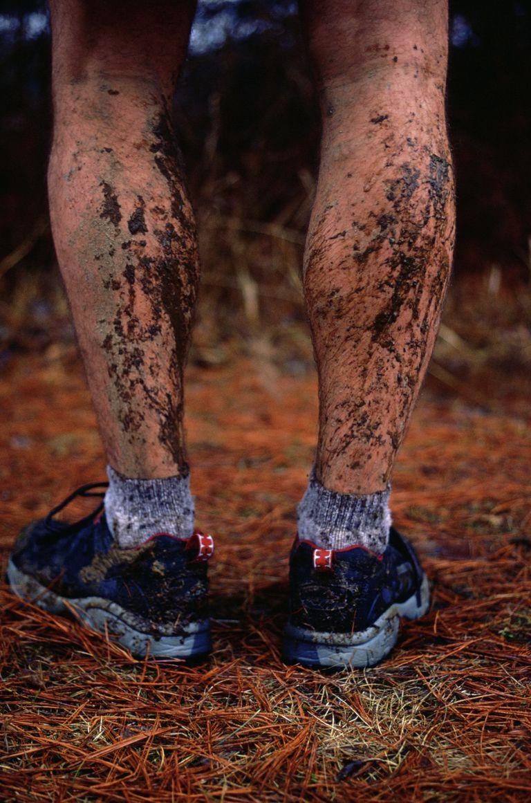 muddy legs