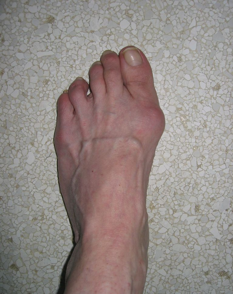 Bunion/HAV Left Foot