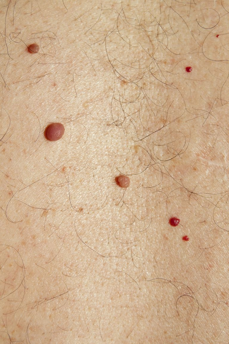 Skin problems - Moles, Cysts and Cherry Angiomas