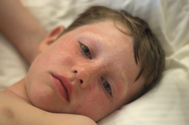 Boy with Sunburned Face