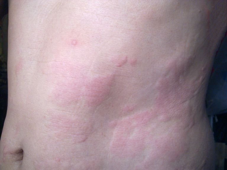 hives (urticaria) on the abdomen after running