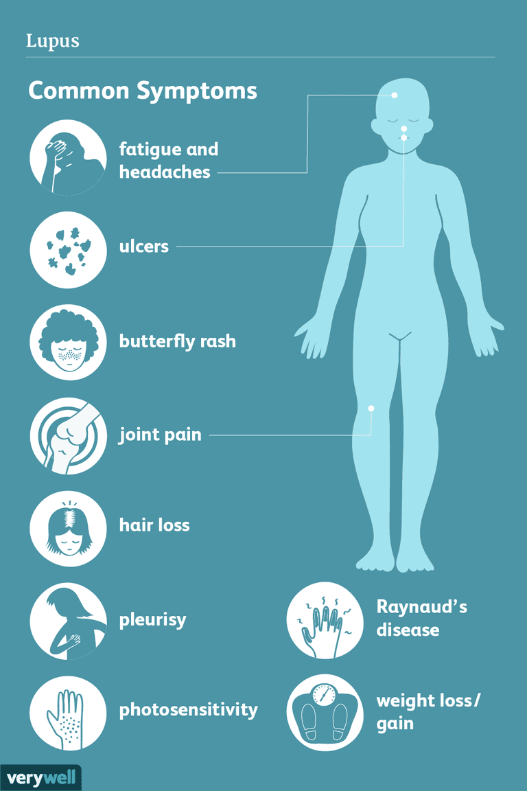 Lupus Signs Symptoms And Complications