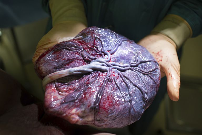 Doctor holding a placenta