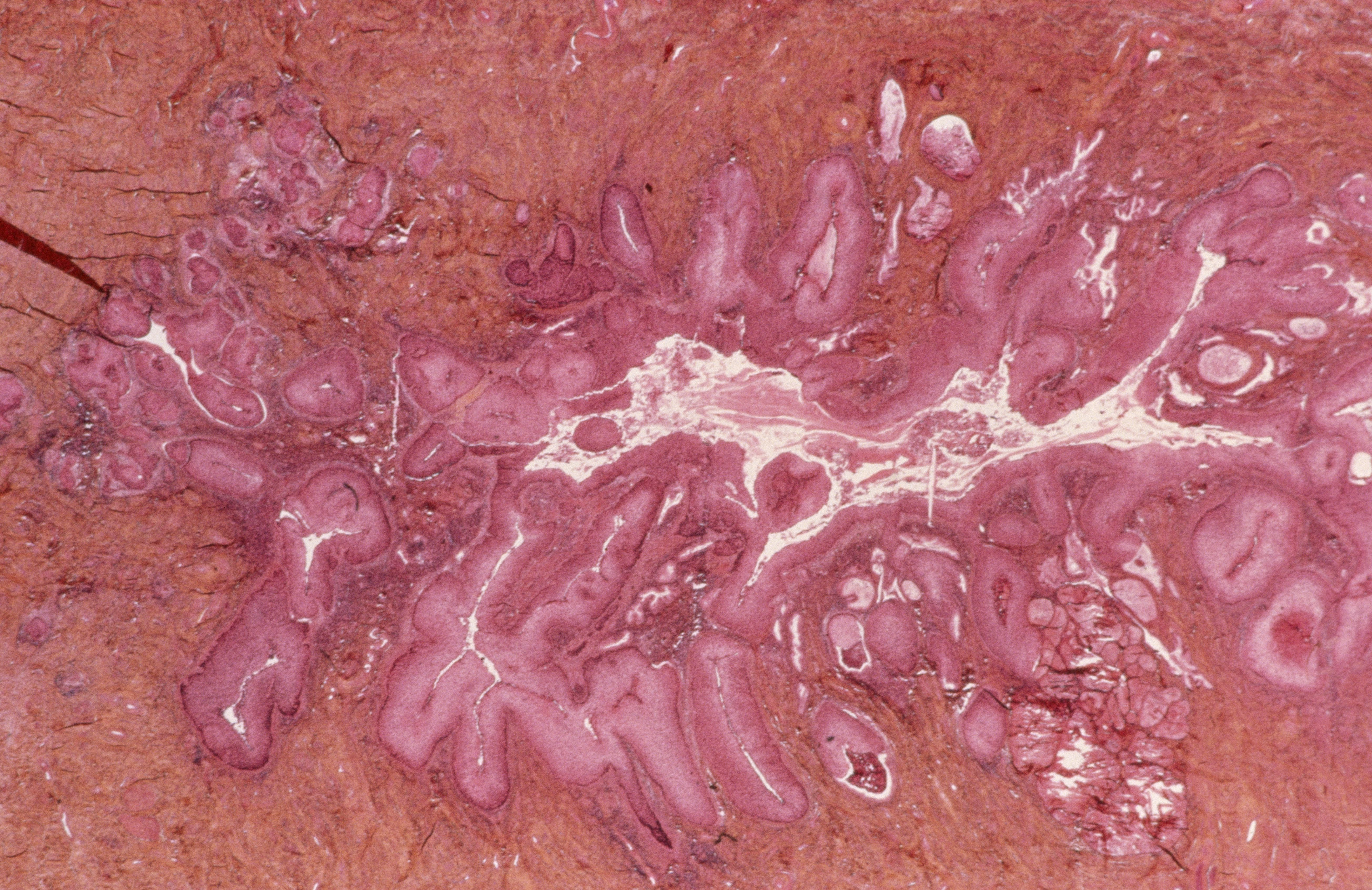 What to Know About Cervical Intraepithelial Neoplasia