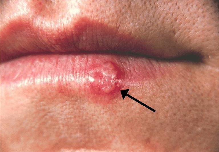 Herpessimplex.png