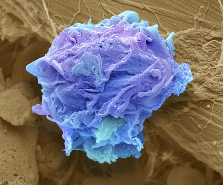 Lymphoma cancer cell, SEM