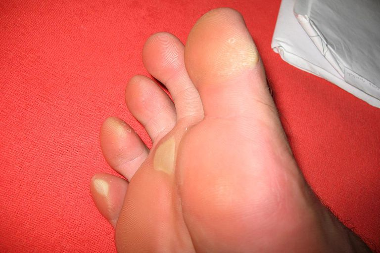 Corns and Calluses - How to Treat These Foot Problems