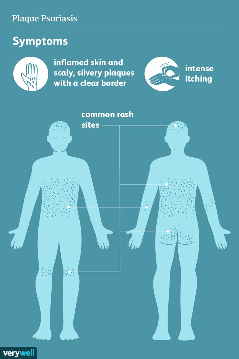 plaque psoriasis symptoms