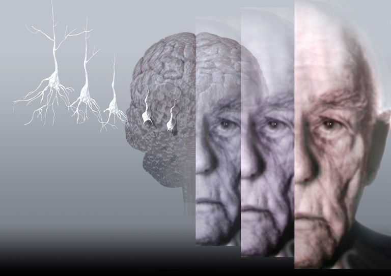 Brain Changes in Alzheimer's Can Affect Behaviors