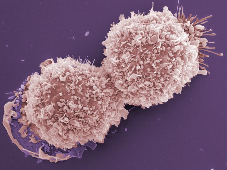 SEM Micrograph of breast cancer cells