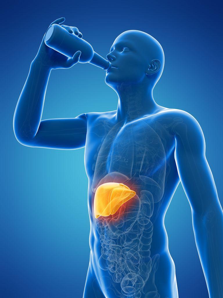 Alcoholic liver disease, artwork