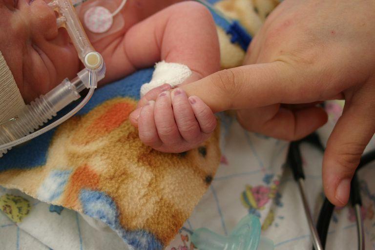 infant in hospital