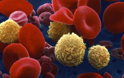hematopoietic stem cell transplantation a manual for nursing practice