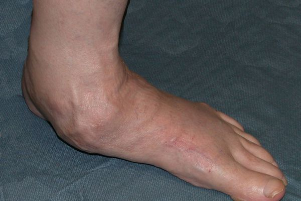 Dr-Blitz-Flat-foot.jpg