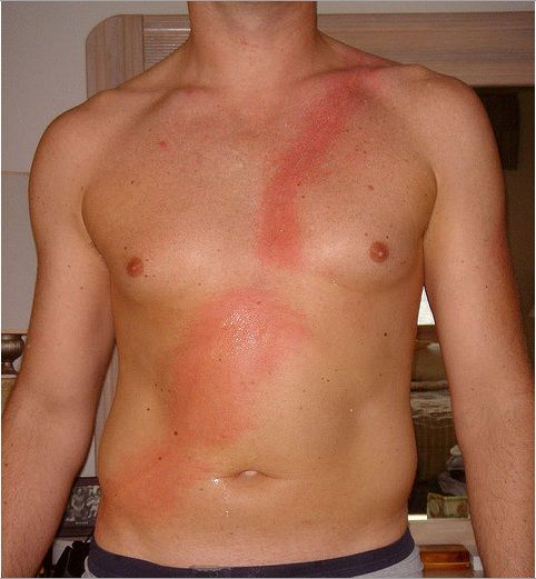 Gallery of Jellyfish Sting Pictures