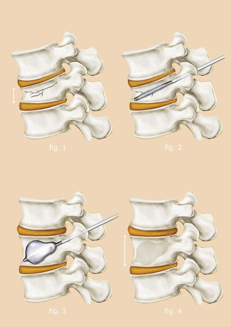 Kyphoplasty illustration