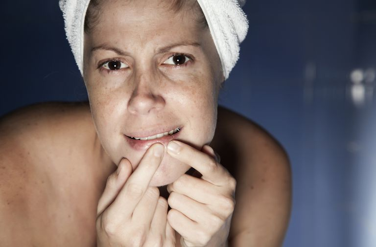 Woman popping a zit
