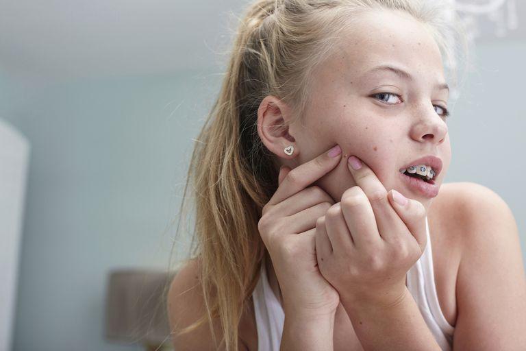 Teen girl acne