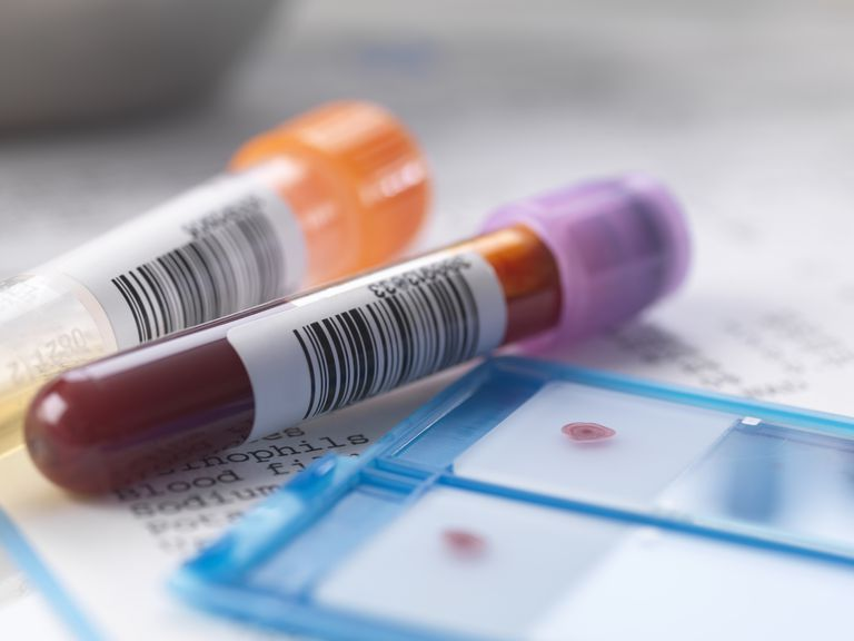 Blood and urine samples with medical results