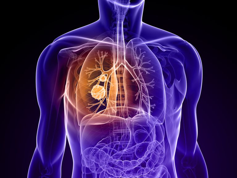 Diagram of a torso showing site of cancer in the lung