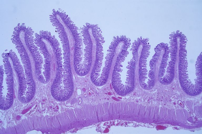 This is a light microscope histological preparation of the intestinal lining, stained using hematoxylin and eosin.