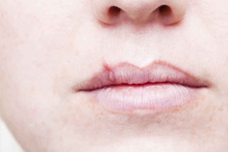 A cold sore on the lips.